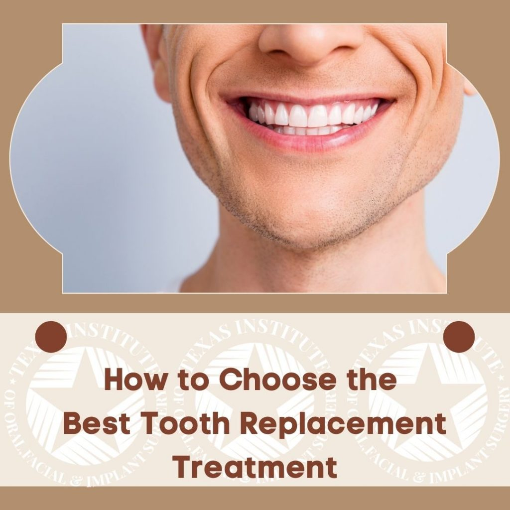 Tooth replacement Dallas Midlothian Waxahachie